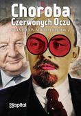 Michalkiewicz Stanisław - Choroba czerwonych oczu