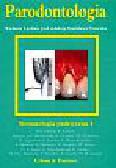 Bernimoulin J.P., Diedrich P., Diekwisch Th. - Parodontologia. Stomatologia praktyczna 4