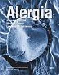 Holgate Stephen T., Church Martin K., Lichtenstein Lawrence M. - Alergia