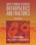Louis Solomon,David Warwick,Selvadurai Nayagam - Apley`s Concise System of Orthopaedics & Fractures