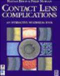 Philip Morgan,Nathan Efron,B Efron - Contact Lens Complications