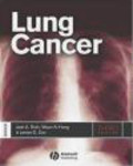 J Roth - Lung Cancer