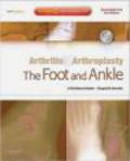 Shepard Hurwitz,Christian Coetzee,S Hurwitz - Arthritis and Arthroplasty The Foot and Ankle