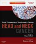 Wayne Koch,W Koch - Head and Neck Cancers