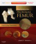 James P. Waddell,J Waddell - Fractures of the Proximal Femur with DVD