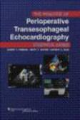 Practice Periop Transesophageal Echocardiography