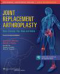 Mark Pagnano - Joint Replacement Arthroplasty