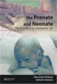 Umberto Simeoni,Gian Carlo Di Renzo,G di Renzo - Atlas of the Prenate & Neonate