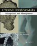 Uterine Leiomyomata Pathogenesis & Management