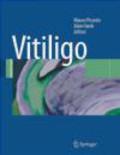 M Picardo - Vitiligo