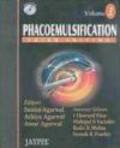 Amar Agarwal,Athiya Agarwal,Sunita Agarwal - Phacoemulsification 2 vols