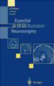 L. Ferrante,P. Lunardi,A. Fortuna - Essential Illustrated Neurosurgery