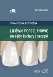 Licówki porcelanowe na zęby żuchwy i szc